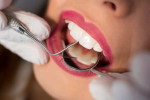 dientes de cerca revision