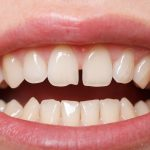 foto dientes