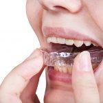 funda dientes